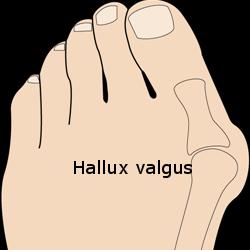 Hallux_valgus Hickl Life