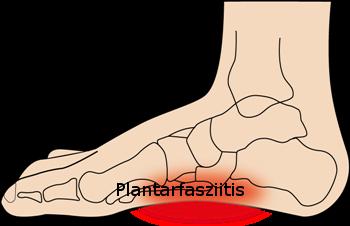 Plantarfasziitis Hickl Life